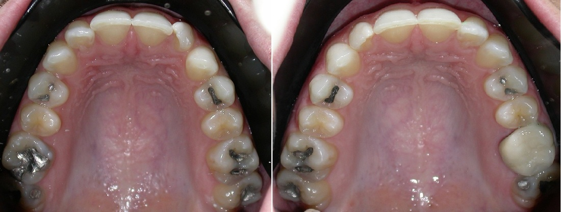 Dr. Avo Fronjian Invisalign Before and After AM8