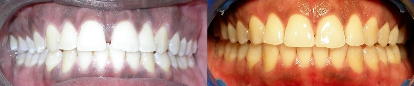 Dr. Avo Fronjian Invisalign Before and After KC9