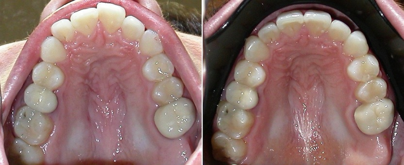 Dr. Avo Fronjian Invisalign Before and After KY8