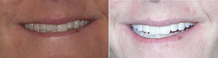 Dr. Avo Fronjian Invisalign Before and After KG3