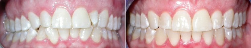 Dr. Avo Fronjian Invisalign Before and After KH7