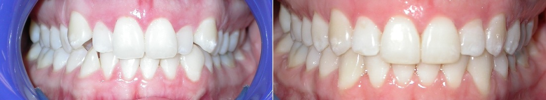 Dr. Avo Fronjian Invisalign Before and After TM9