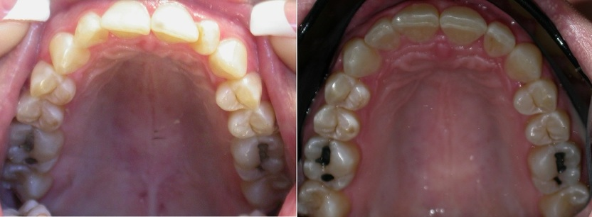 Dr. Avo Fronjian Invisalign Before and After KH9