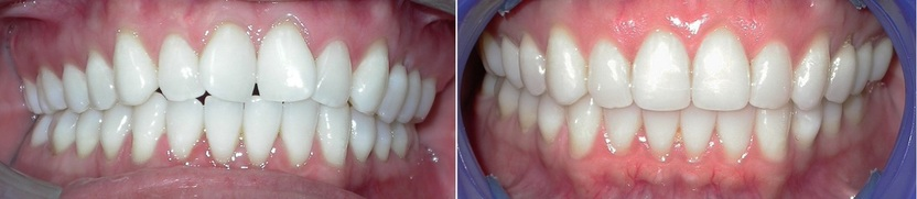 Dr. Avo Fronjian Invisalign Before and After SE6