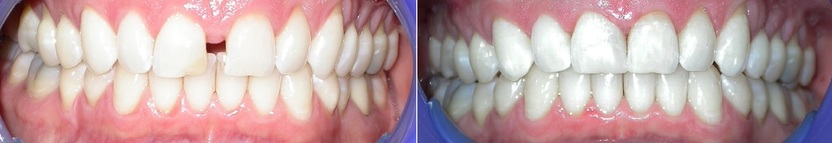 Dr. Avo Fronjian Invisalign Before and After BD6